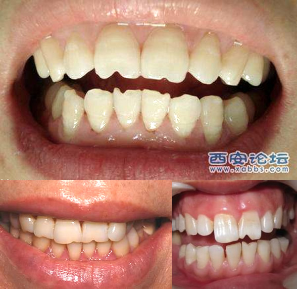 In certain parts of China, among certain social classes, teeth like these are a point of pride.